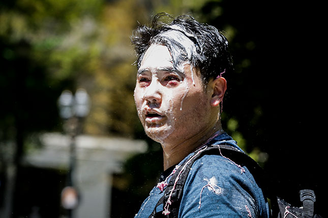 Among major newspapers, only the Wall Street Journal editorialized against the Antifa assault on right-leaning journalist Andy Ngo, who was seriously injured in June. (MORIAH RATNER/GETTY IMAGES)
